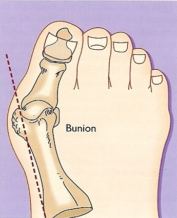 foot bunions procedures Dr Peter Smith Cape Town