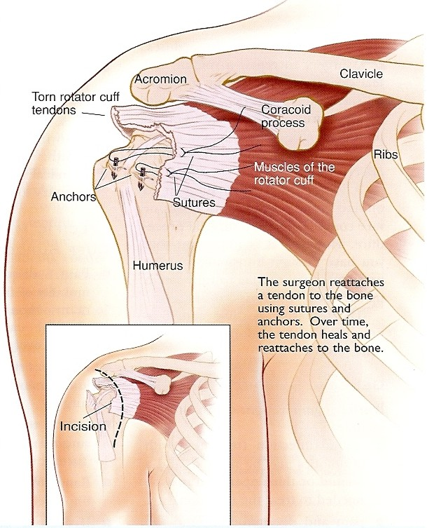 Dr Peter Smith Orthopaedic Shoulder - Rotator Cuff Procedures ...