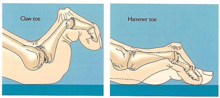 Claw and Hammer Toe Procedures