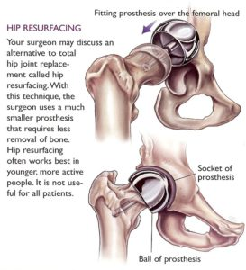 dr-peter-smith-hip-repacement_3