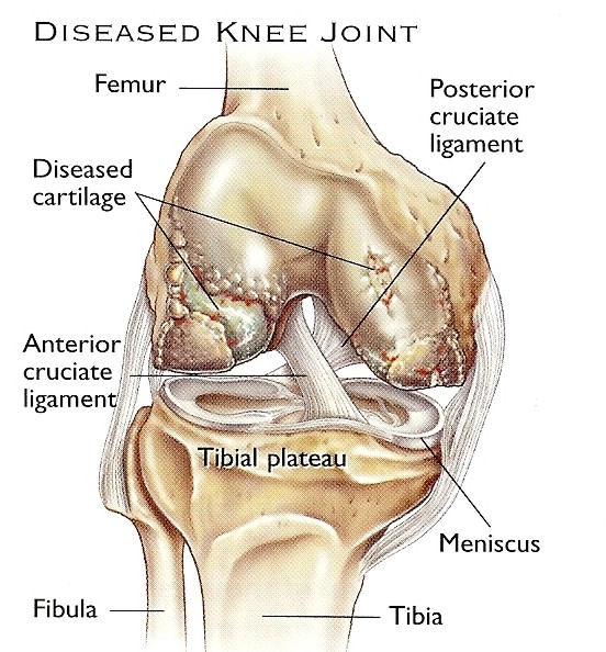 dr-peter-smith-knee-replacement-4